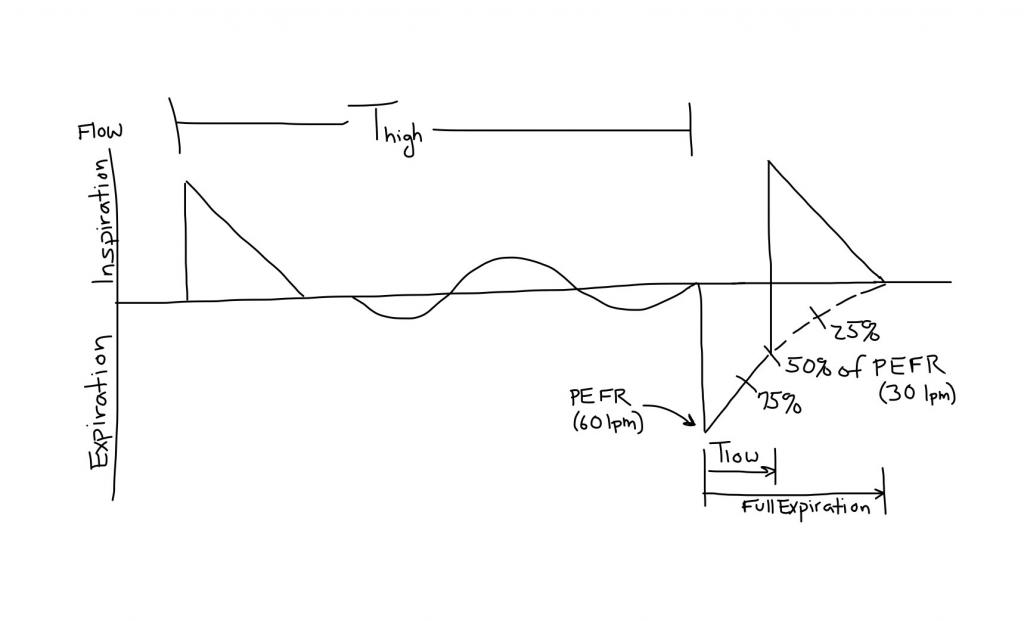 APRV_Flow_Time_Waveform