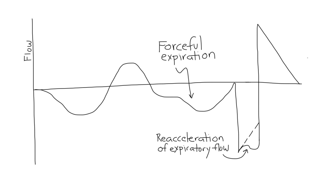 APRV_Forceful_Expirations