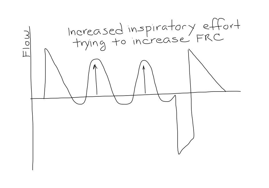 APRV_Increased_Inhalation_Effort
