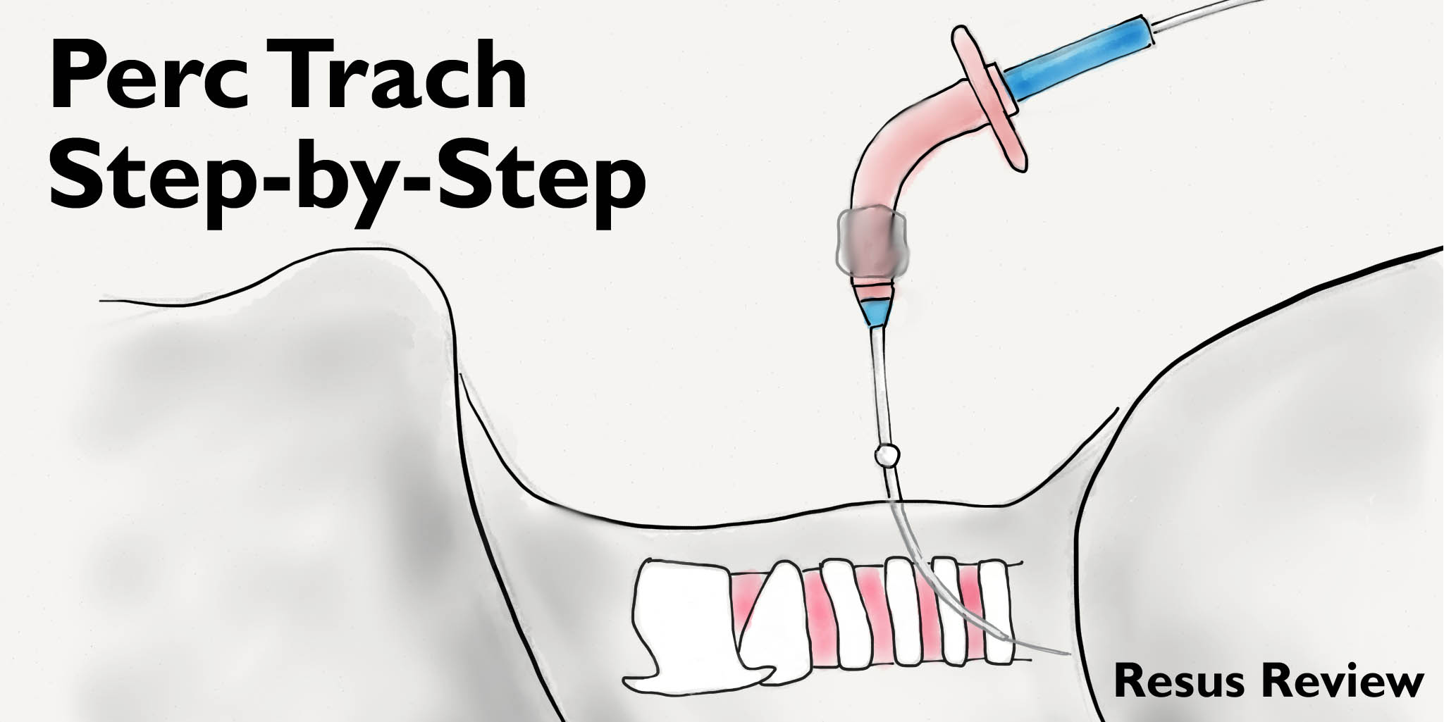 Perc Trach Step-by-Step Tutorial – Resus Review