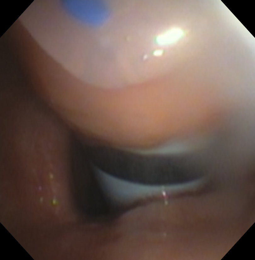 Percutaneous Tracheostomy Blue Rhino Dilator Bronchoscopic View