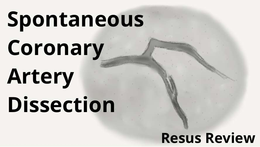Spontaneous Coronary Artery Dissection
