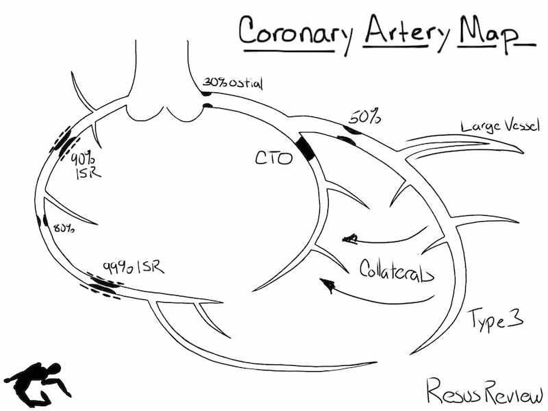Coronary Artery Diagramming | Resus Review
