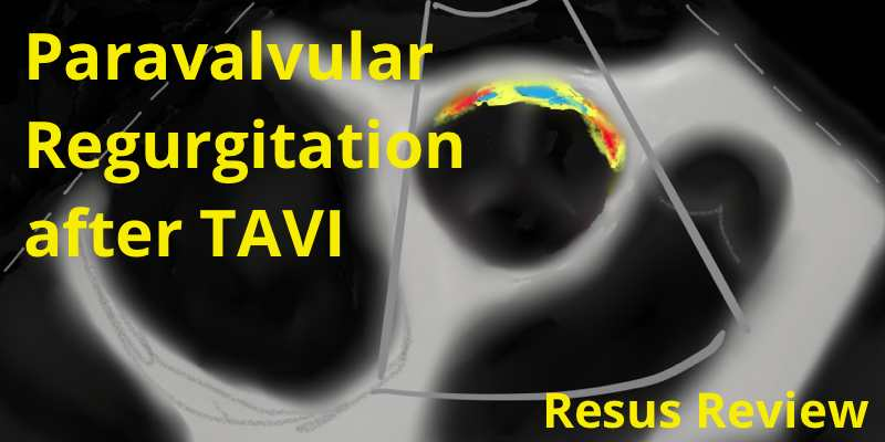 TAVI-Paravalvular-Regurgitation-Featured-Image